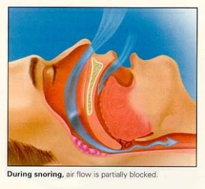 During Snoring