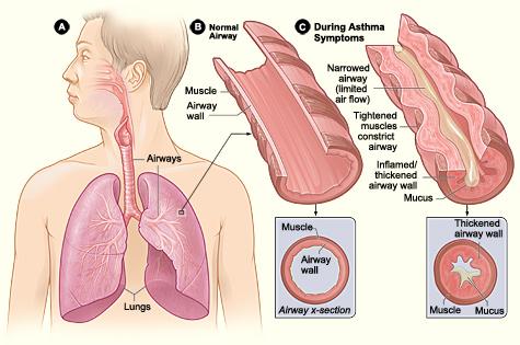 asthma allergy
